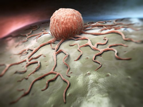 The Difference Between Benign, Malignant and Premalignant Tumors